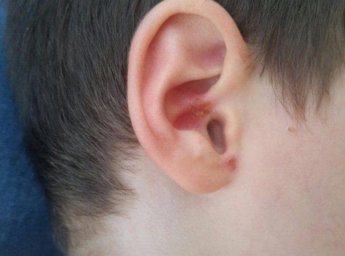 כמה מהפצעים שהופיעו בעקבות הזיהום