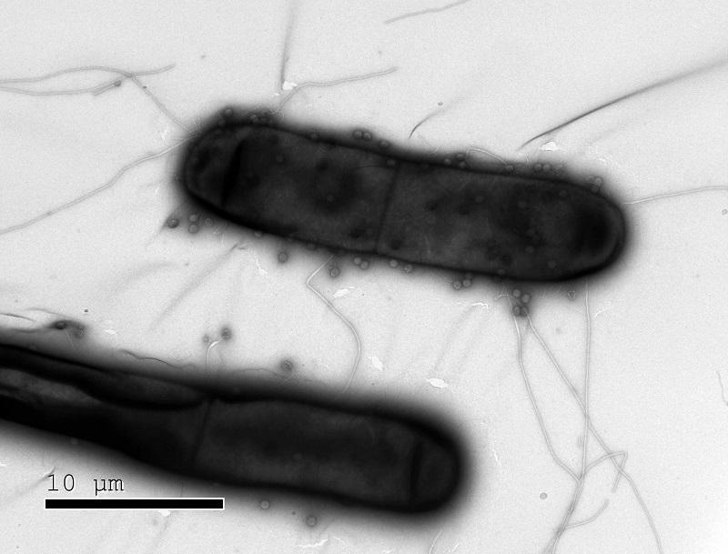 בקטריות בעלות מנגנוני הגנה כנגד וירוסים (צילום: מכון ויצמן למדע)