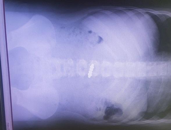 צילום הרנטגן עם המגנטים (צילום: בית החולים קפלן)