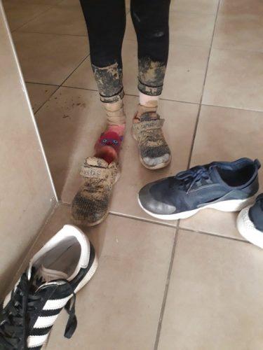 רגליה של תלמידת כיתה א' ששקעה בבטון בדרך חזרה מבית הספר בן צבי
