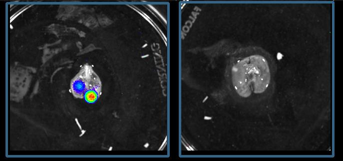 מתוך המחקר על הגורמים להתפשטות סרטן העצמות על שם יואינג