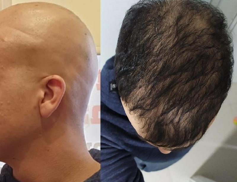חולה אלופציה אראטה מרחובות לפני ואחרי הטיפול בכללית רפואה משלימה