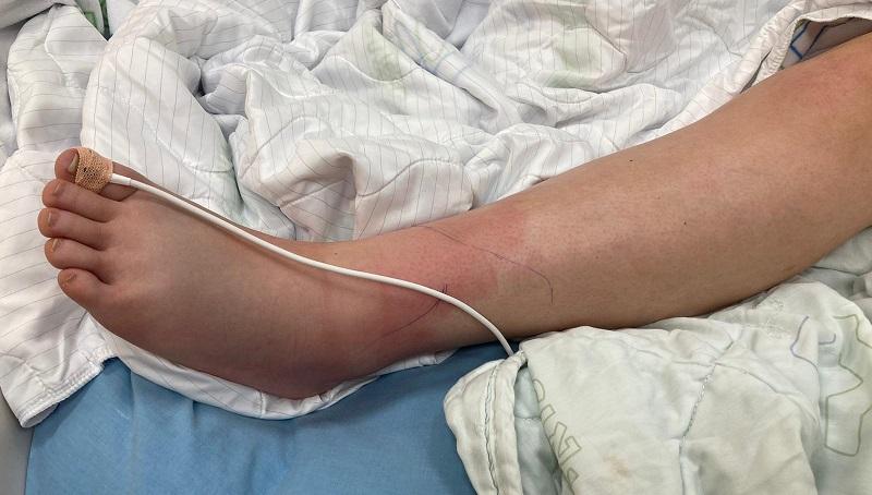 הרגל שהוכשה על ידי הנחש (צילום: המרכז הרפואי קפלן)